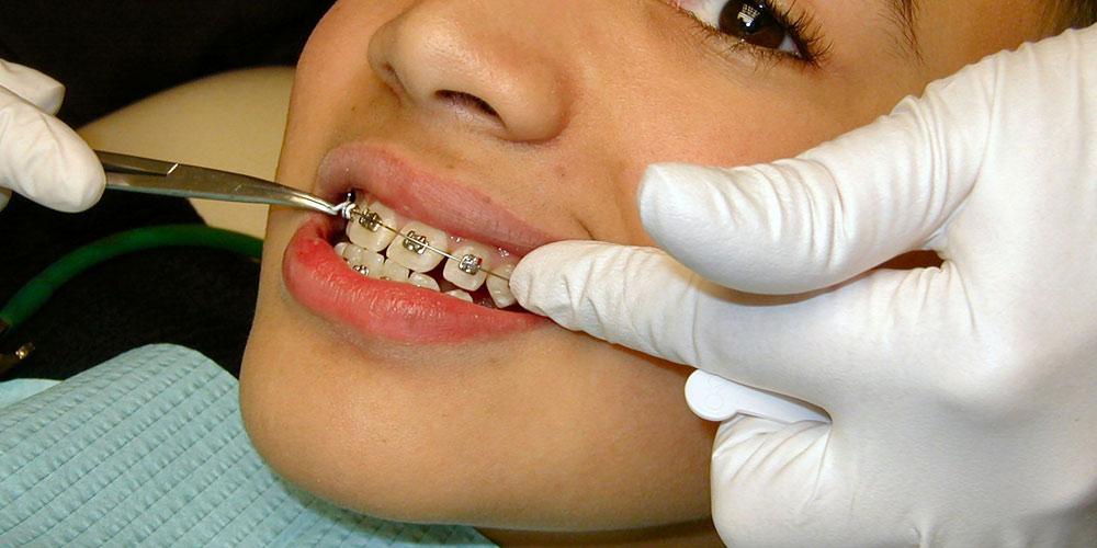 Tout savoir sur l 39 appareils dentaire pour enfants for Appareil detartrage dentaire maison